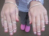 Bug's Silver Ring Splints, from Our Journey with Ehlers-Danlos Syndrome